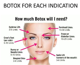 How much Botox will I need?