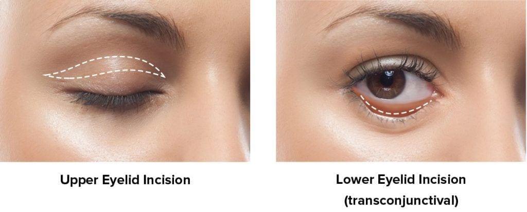 Eyelid Surgery in Baton Rouge & Hammond, LA | Weiler Plastic