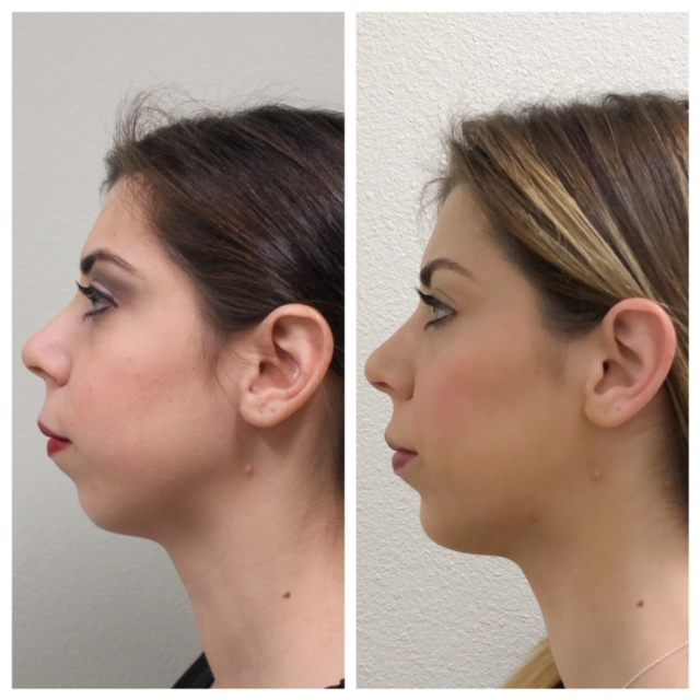 chin augmentation with juvederm