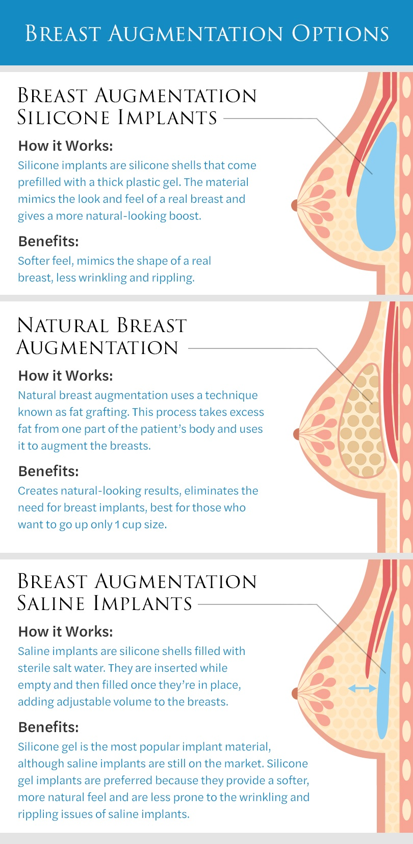 Infographic of breast augmentation options including: Breast Augmentation with Silicone Implants; Natural Breast Augmentation; Breast Augmentation with saline implants.