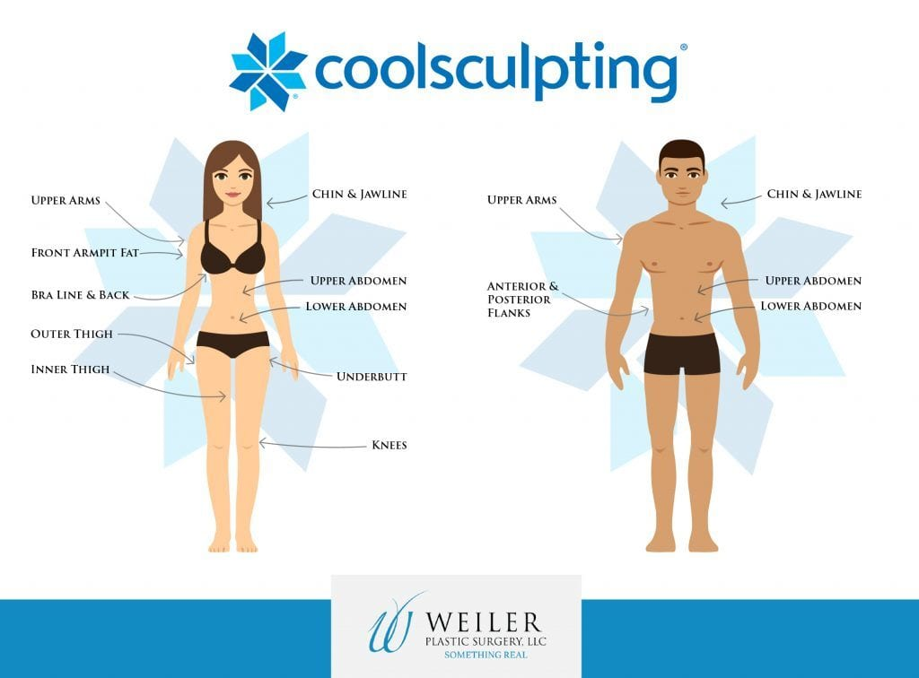 Infographic of CoolSculpting treatment areas on women and men.